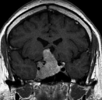 ACTH secreting pituitary 4 mm microadenoma, not directly visible on unenhanced T1 weighted image (left: only mild deviation of pituitary stalk to the left), well appreciated only on dynamic contrast