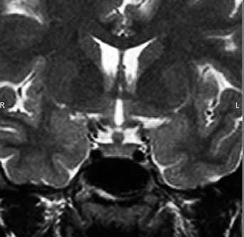 Extensive myxochondrosarcoma of the skull base, involving sellar and suprasellar areas, midlle and posterior fossa, paranasal sinuses, and left orbit on T2 weighted MR image.