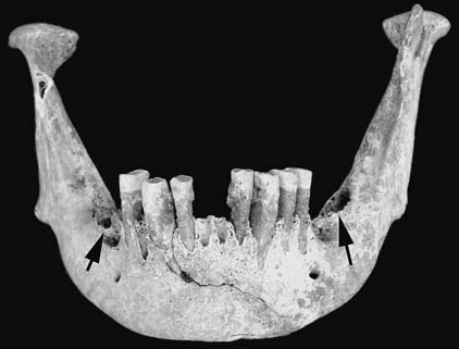 Třeboradice, feature No. 3. Skeleton No. 1, mandibula. Degree of abrasion does not correspond to maxilla. Intravitally lost 36, 37 and 47 (indicate by arrows). Tartar deposit on incisors.