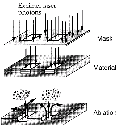 Laser Photoablation High aspect ratio channels achievable Laser pulses in the UV