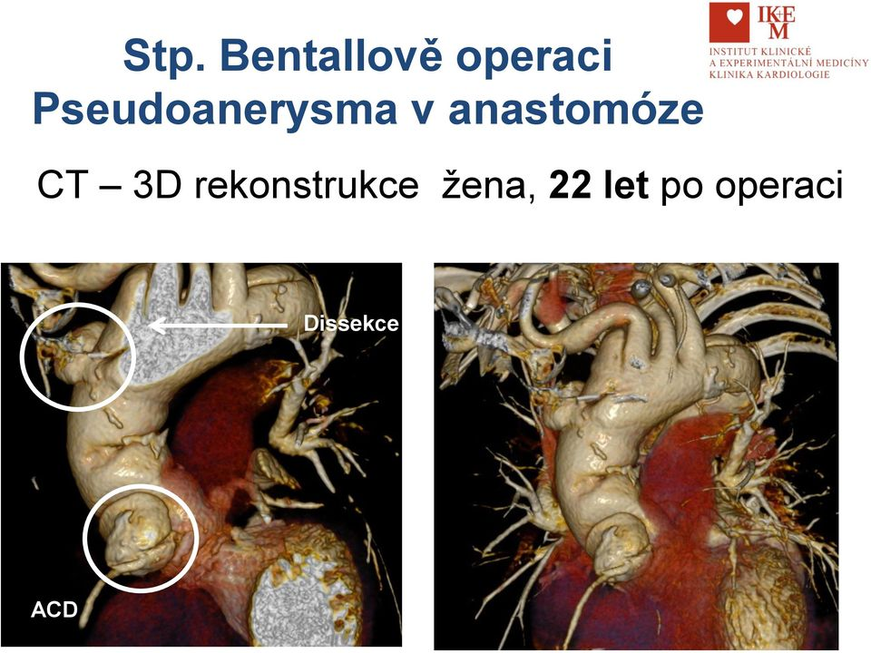 anastomóze CT 3D
