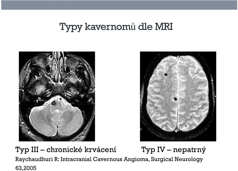 Raychaudhuri R: Intracranial