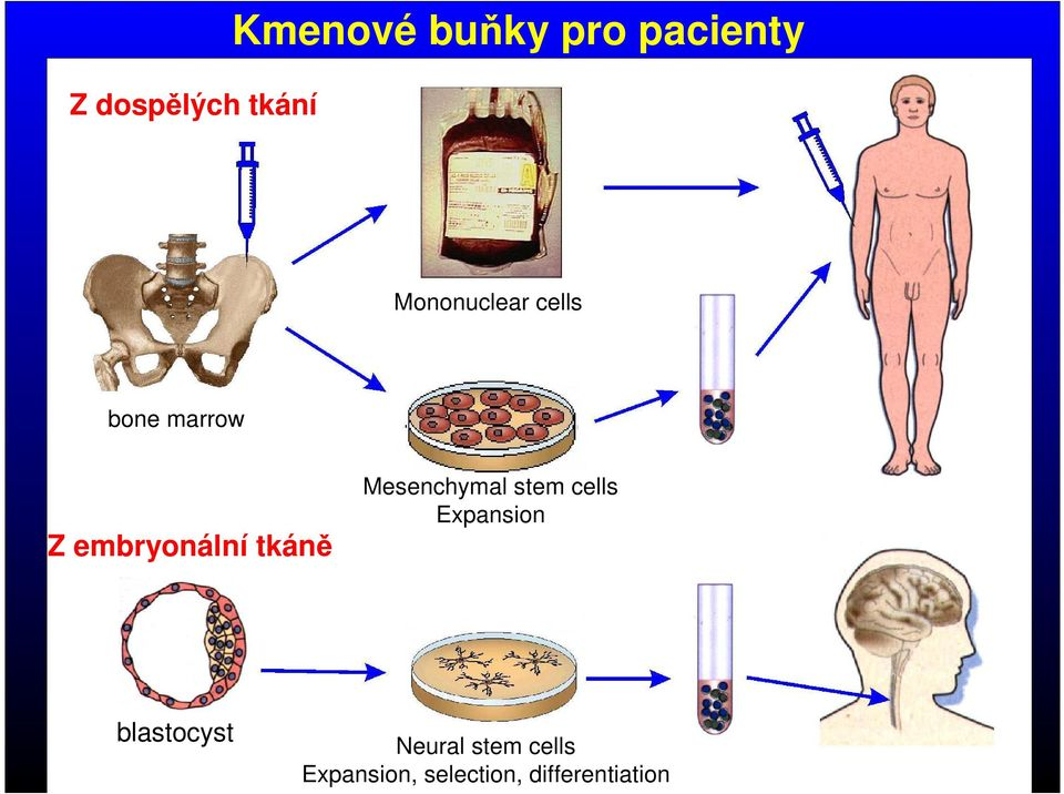tkáně Mesenchymal stem cells Expansion