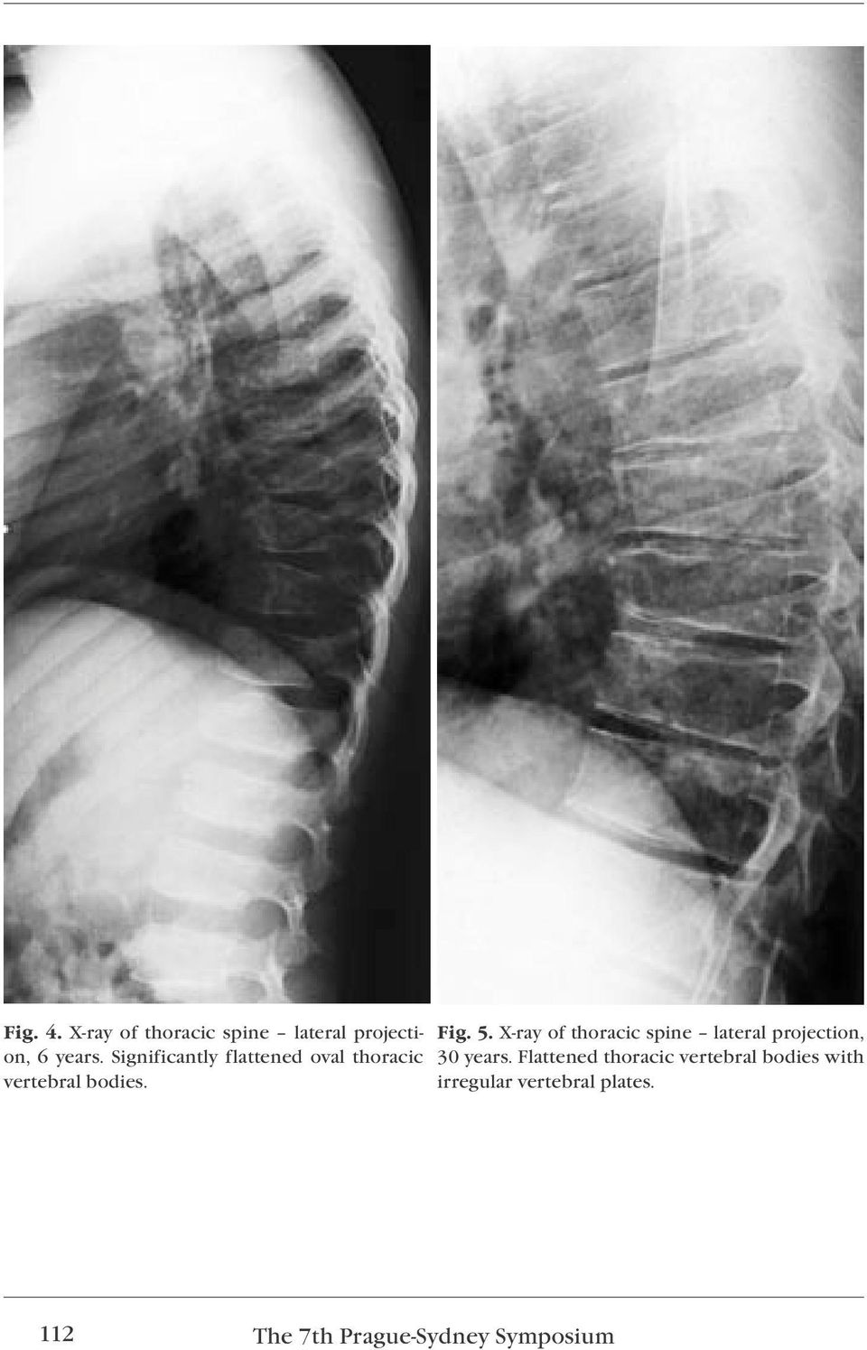 X-ray of thoracic spine lateral projection, 30 years.