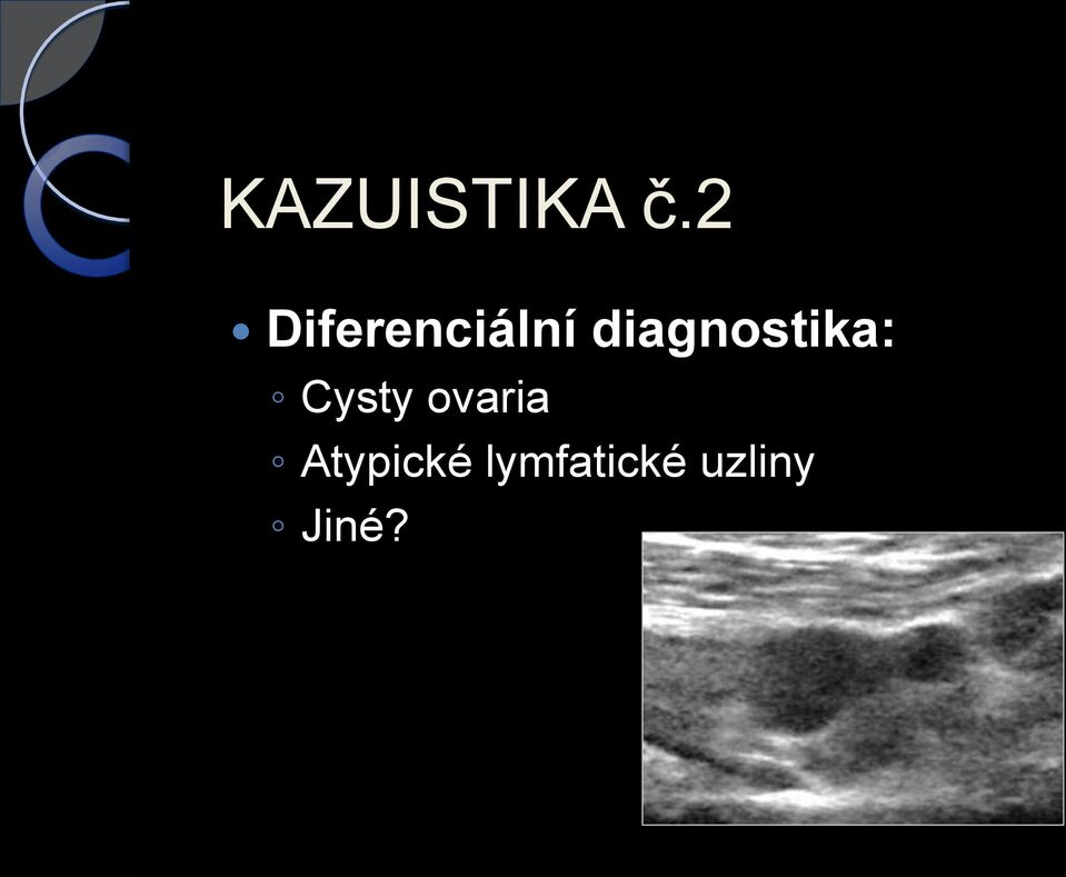 diagnostika: Cysty