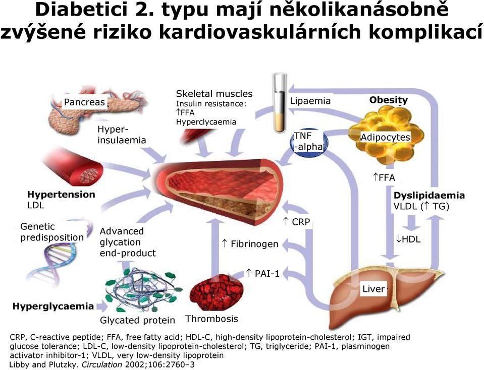 Obesity Adipocytes FFA Hypertension LDL LDL Dyslipidaemia VLDL ( TG) Genetic predisposition Advanced glycation end-product Fibrinogen CRP HDL PAI-1 Liver Hyperglycaemia