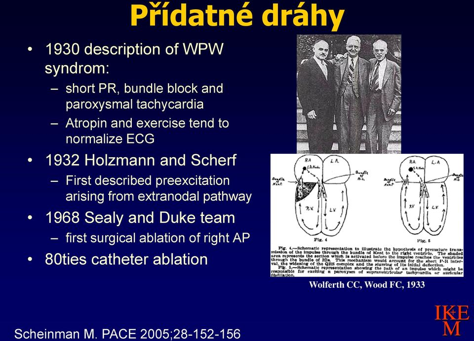described preexcitation arising from extranodal pathway 1968 Sealy and Duke team first