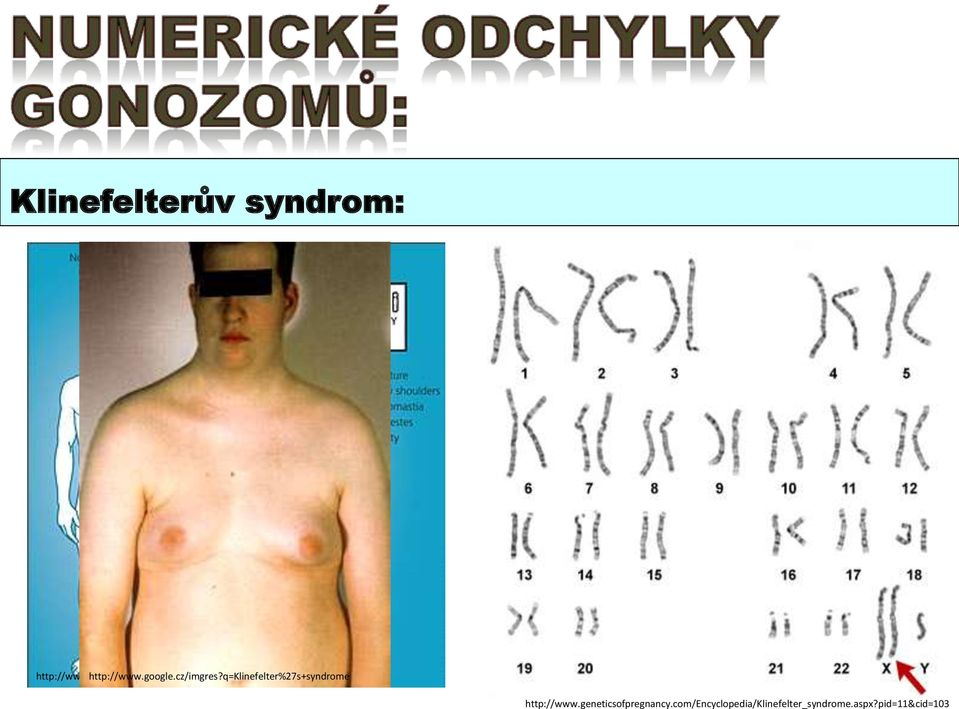 cz/imgres?q=klinefelter%27s+syndrome http://www.